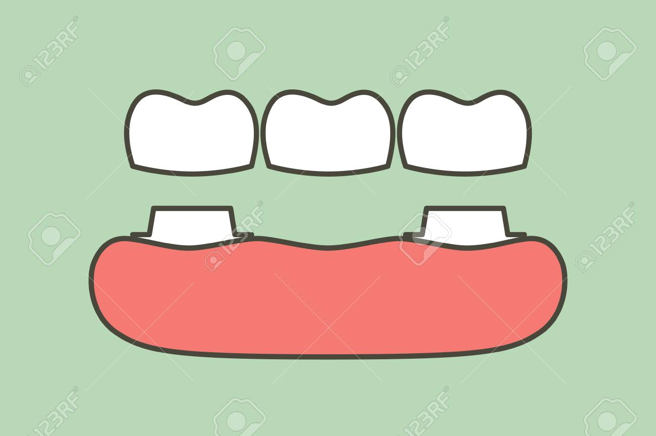 Dental Crown With Bridge Installation Process And Change Of Royalty Free Cliparts Vectors And Stock Illustration Image 104934177 Download dental crown images and photos. 123rf com