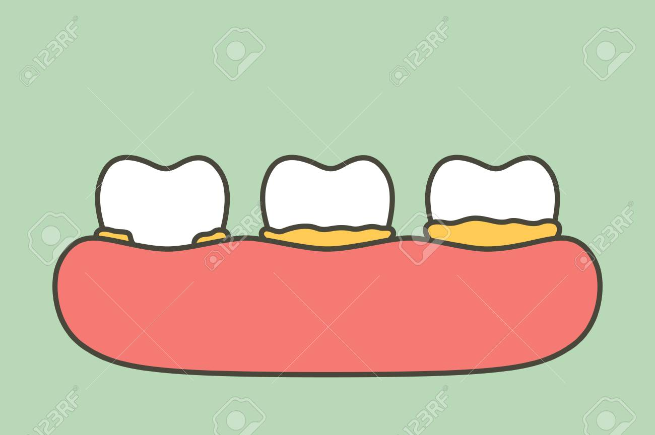 ᐈ Calculus on teeth stock images, Royalty Free dental plaque vectors |  download on Depositphotos®