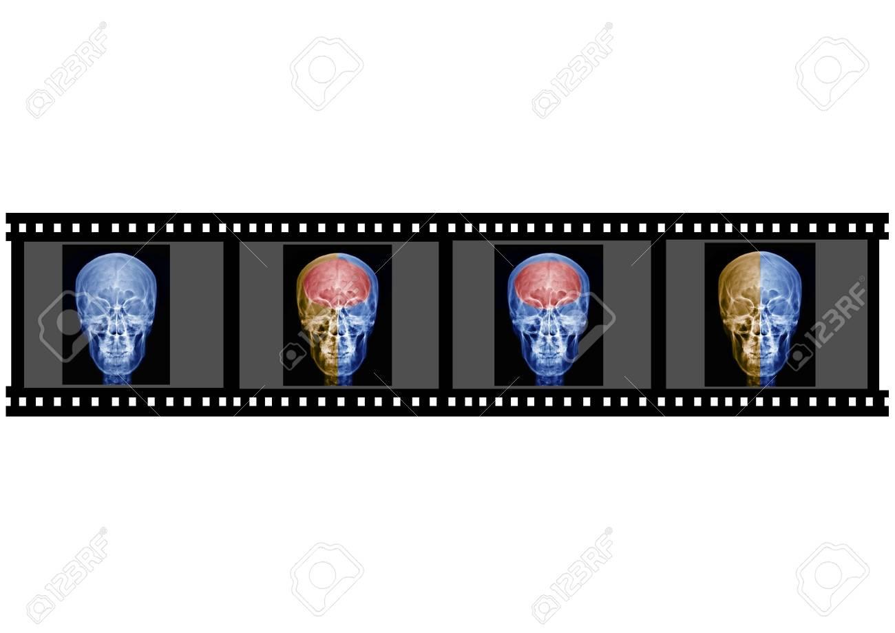 X-ray Stock Photo - 16941507