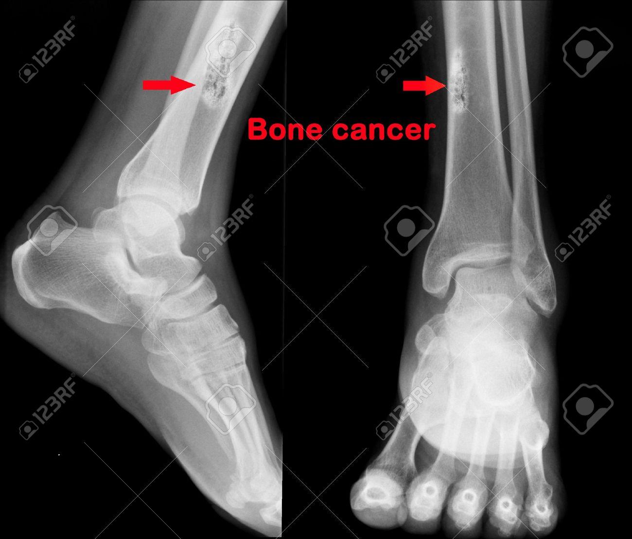 X ray de cancer des os Banque d'images - 20421460