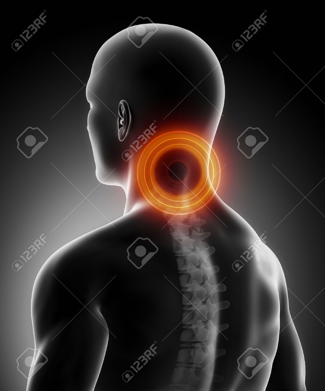 Pain In Cervical Spine Anatomy Stock Photo, Picture And Royalty Free ...