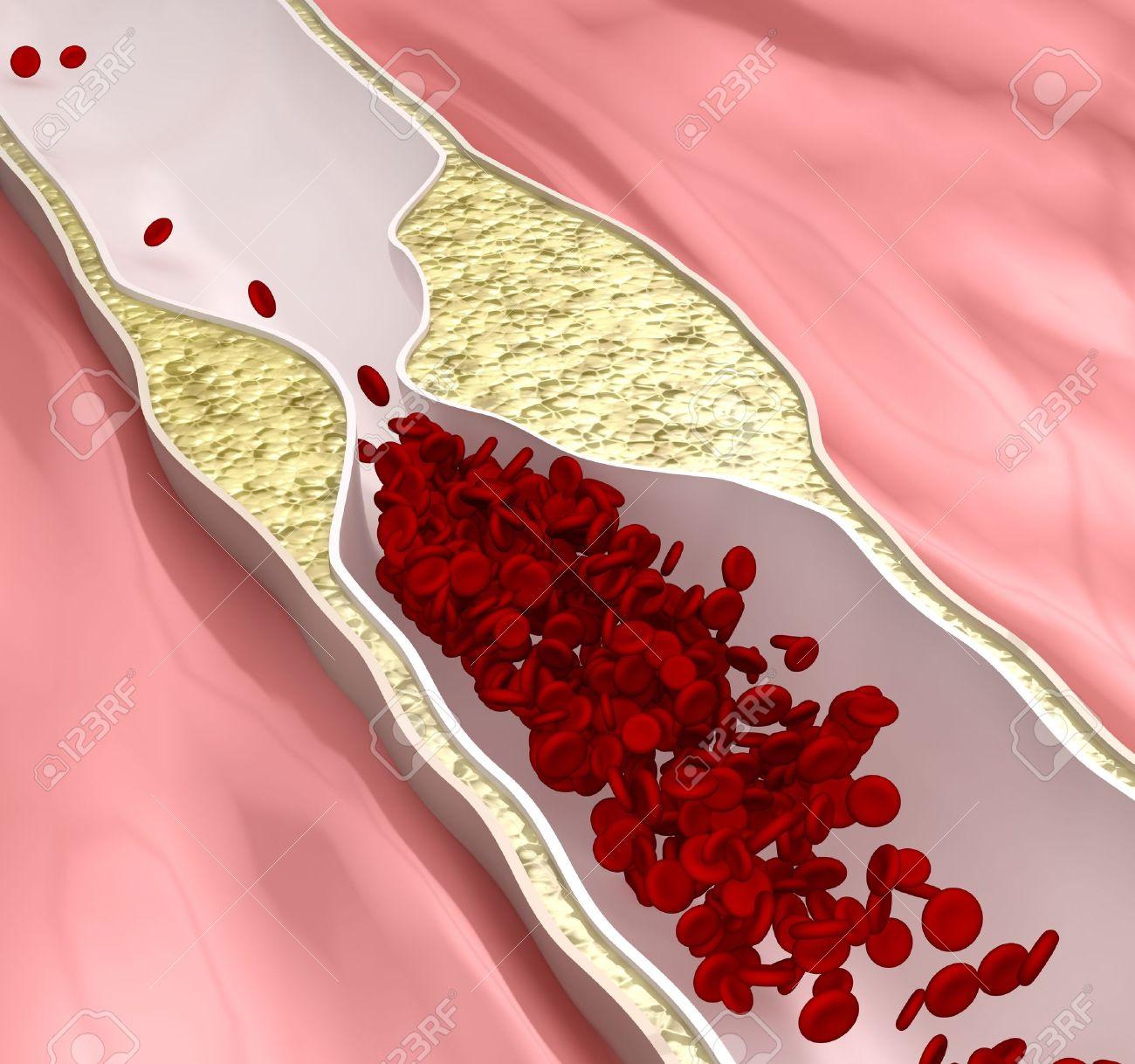 Atherosclerosis disease - plague blocking blood flow Stock Photo - 15095750