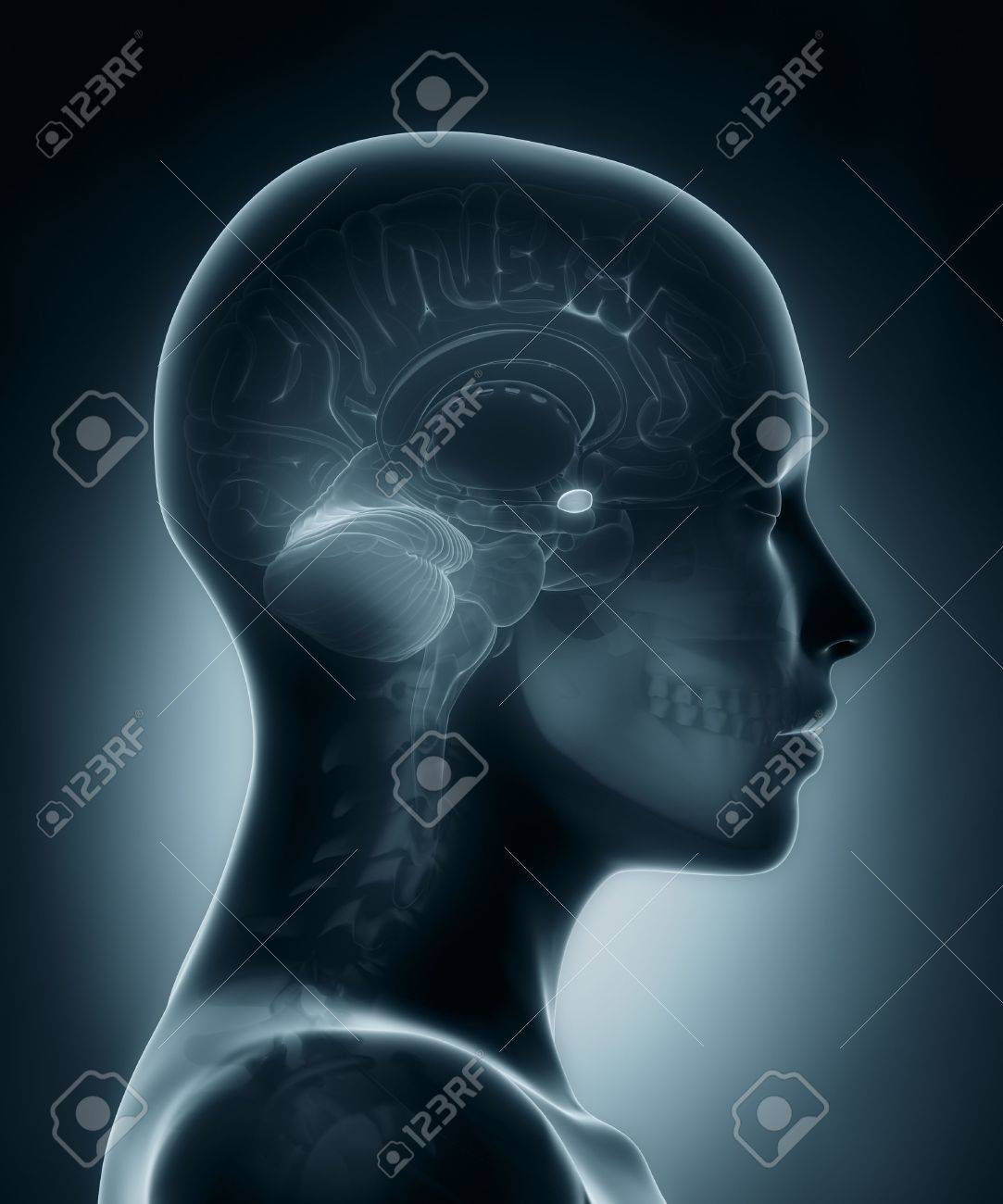 Amygdala Medical X-ray Scan Stock Photo, Picture And Royalty Free ...