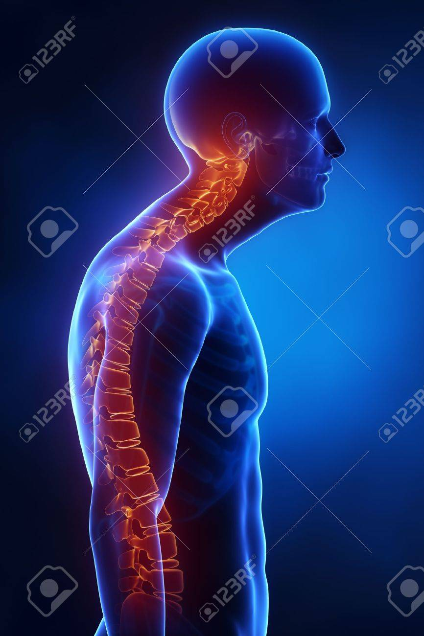 Kyphotic spine lateral view in x-ray Stock Photo - 19006070