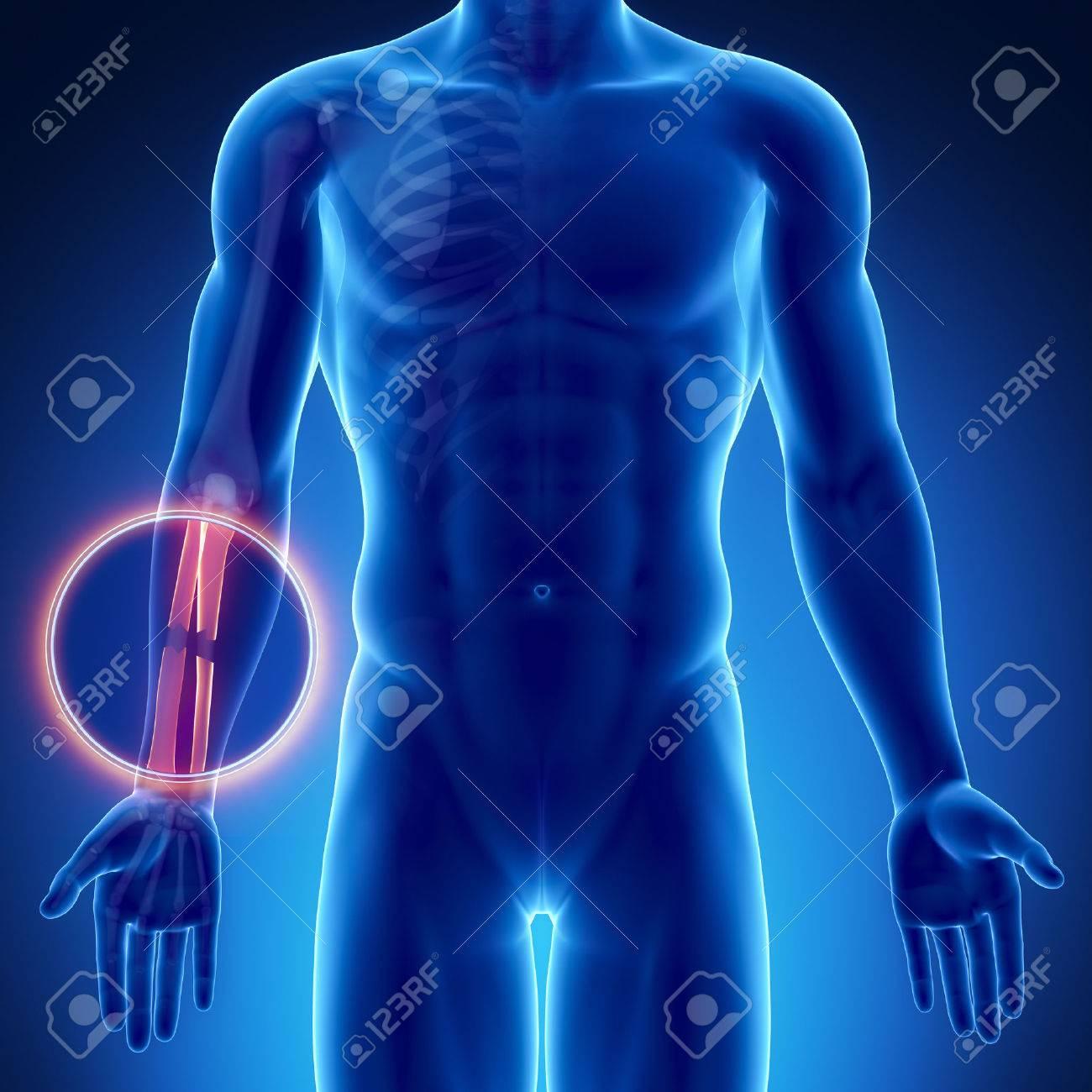 Male Bone Anatomy Radius Ulna Broken Stock Photo, Picture And ...
