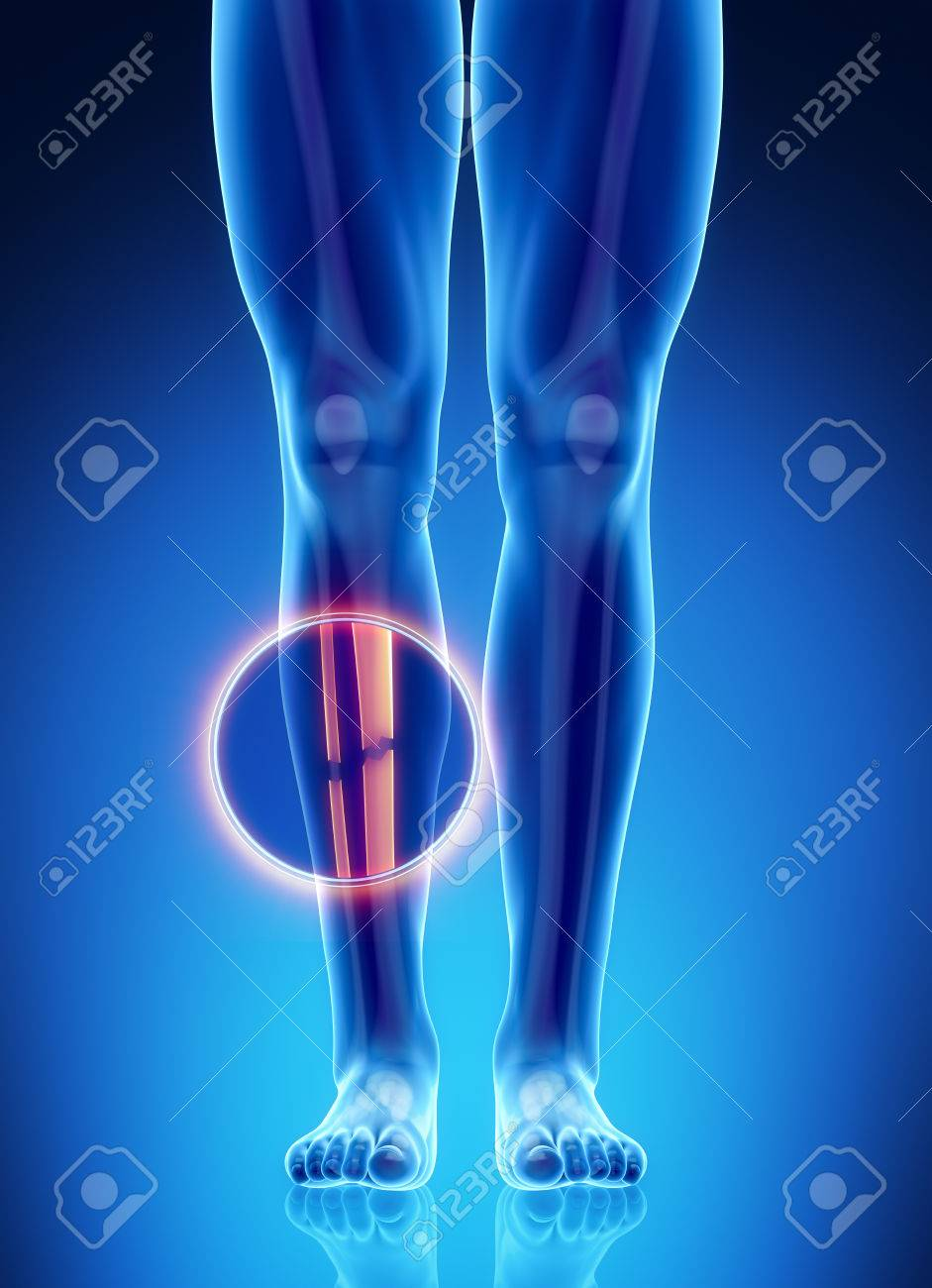 Male Bone Anatomy Fibula And Tibia Broken Stock Photo, Picture And ...