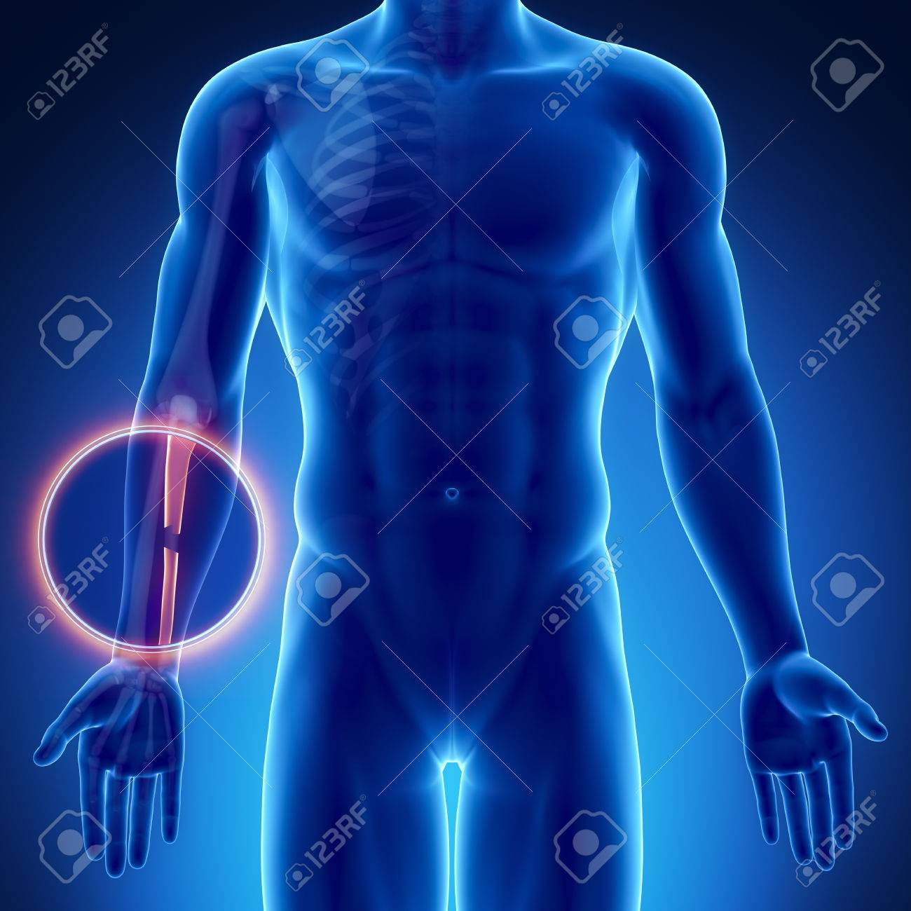 Male Bone Anatomy Ulna Stock Photo, Picture And Royalty Free Image ...