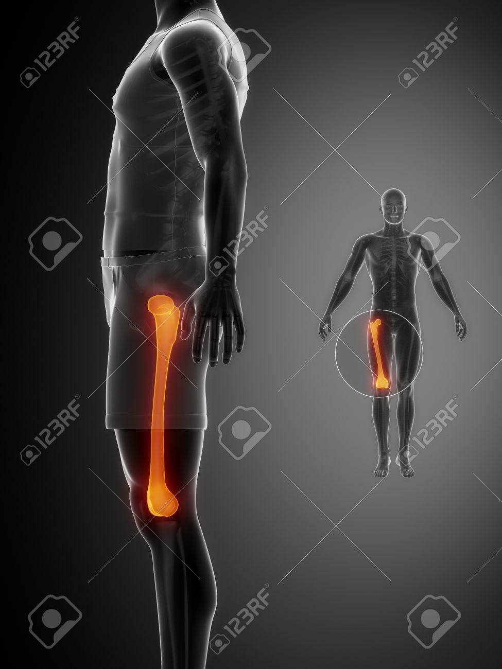 Gammagrafía ósea Ray - FÉMUR Negro X Fotos, Retratos, Imágenes Y ...