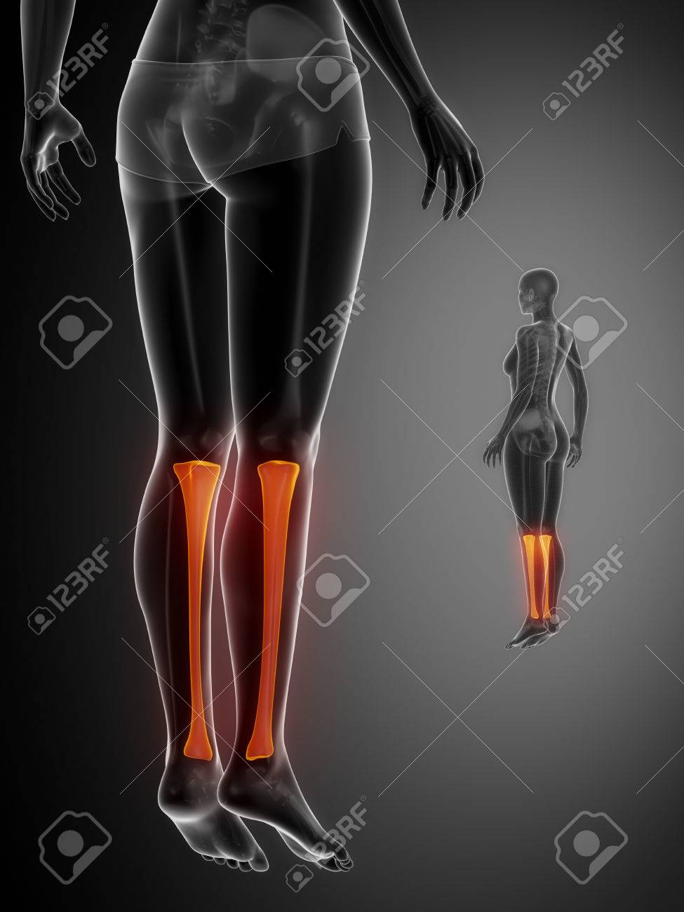 Tibia Anatomy Medical Scan Stock Photo, Picture And Royalty Free ...