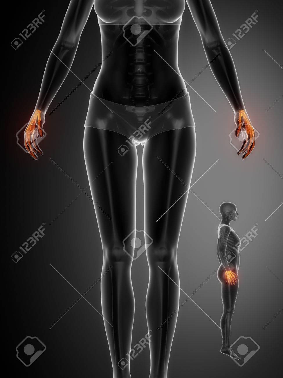 Wrist Bone Anatomy X Ray Scan Stock Photo Picture And Royalty Free