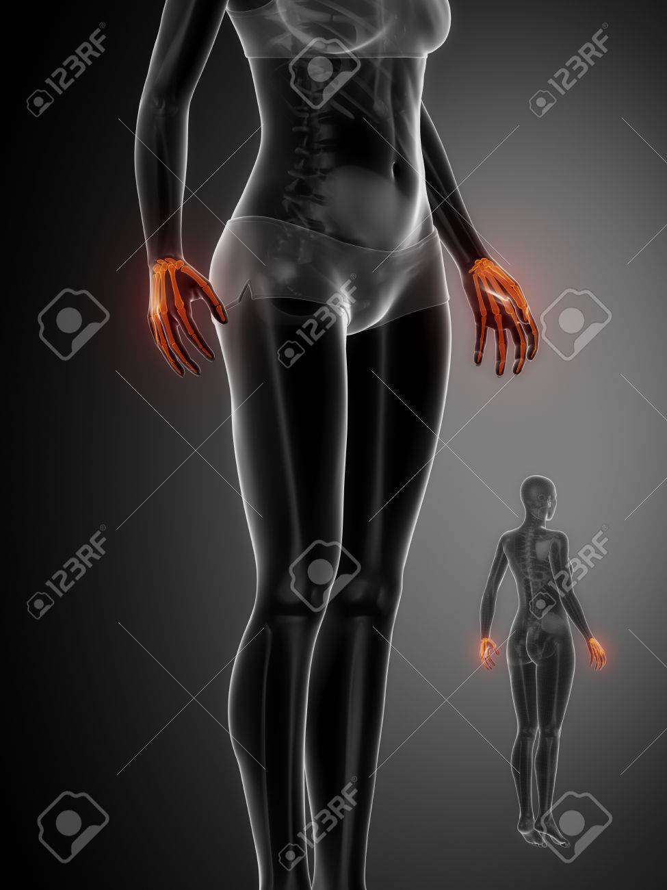 Exploración De Rayos X MUÑECA Anatomía ósea Fotos, Retratos ...