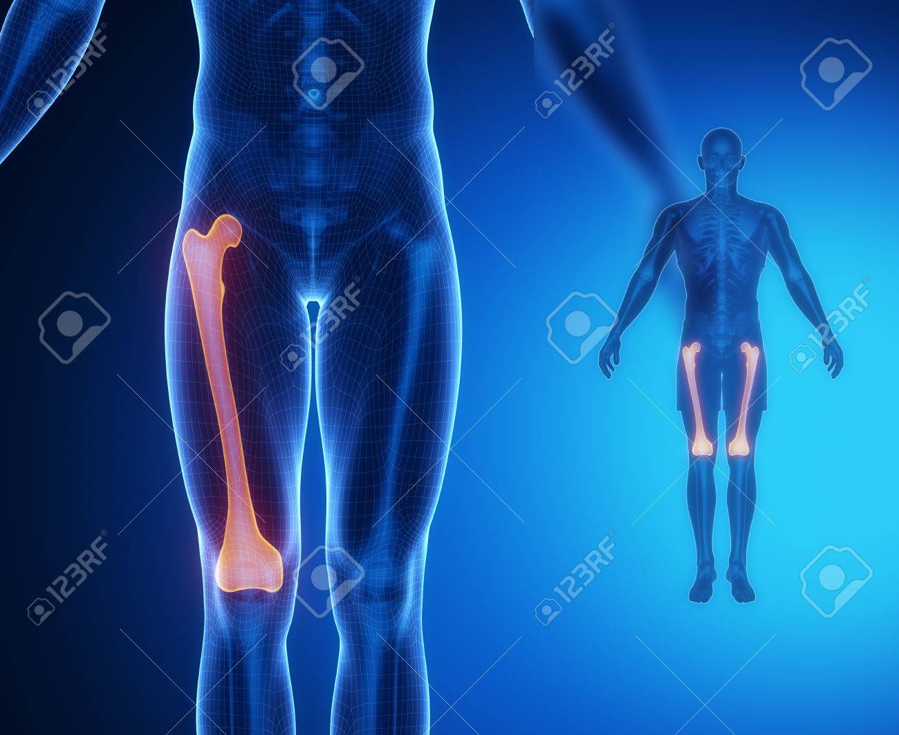 Femur Bone Anatomy X Ray Scan Stock Photo Picture And Royalty Free