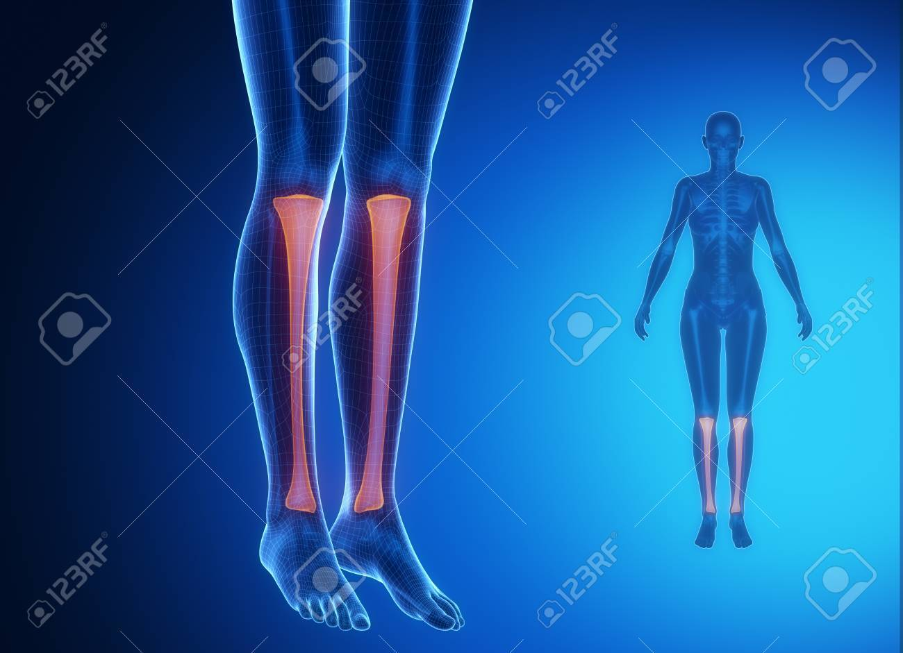 Tibia Anatomy Medical Scan Stock Photo Picture And Royalty Free