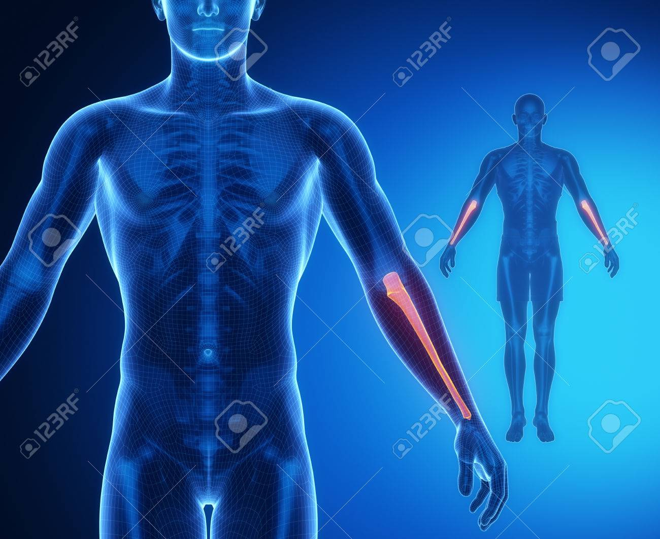 ULNA Bone Anatomy X-ray Scan Stock Photo, Picture And Royalty Free ...