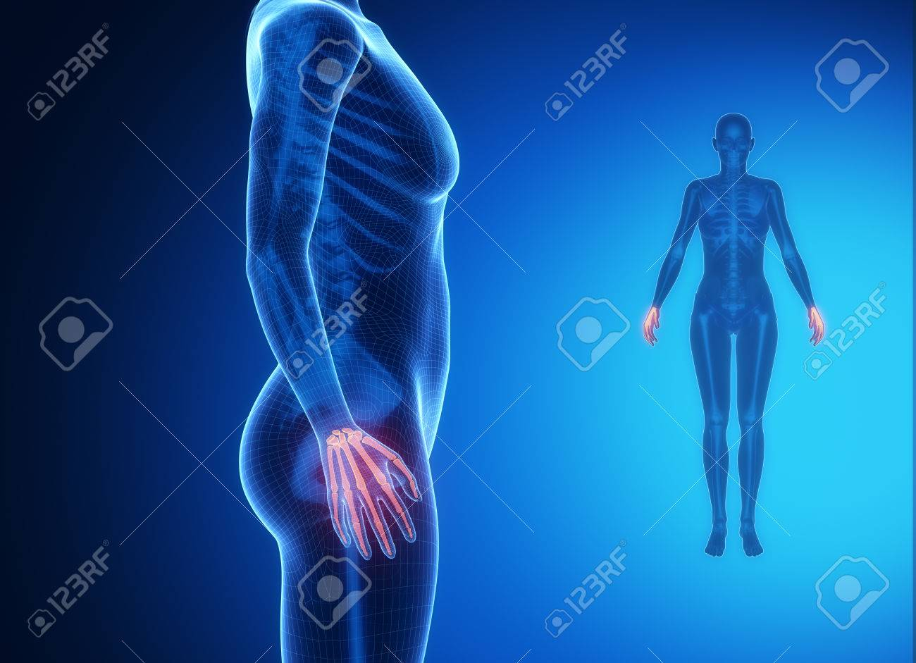 WRIST Bone Anatomy X-ray Scan Stock Photo, Picture And Royalty Free ...