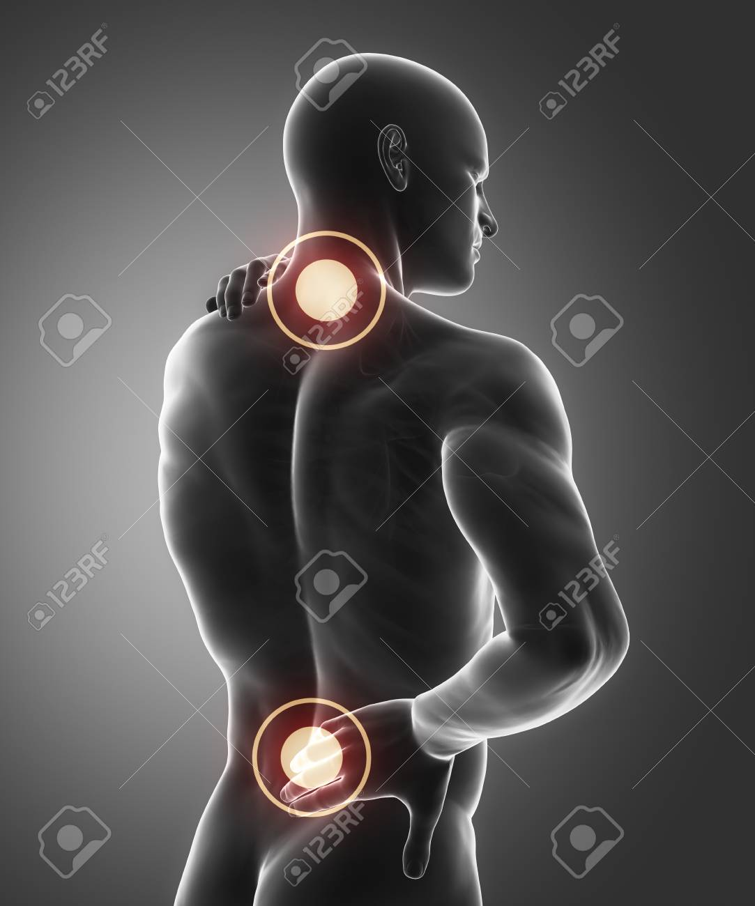 Spine Injury Pain In Sacral And Cervical Region Concept Stock Photo