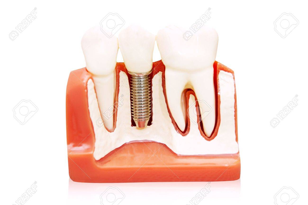 Dental implant - implanted in jaw bone. Isolated on white Stock Photo - 15120430