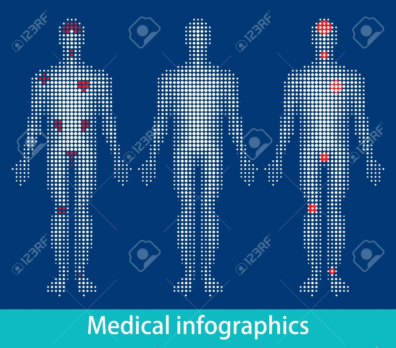 Medical info-graphics vector eps Stock Vector - 10119302