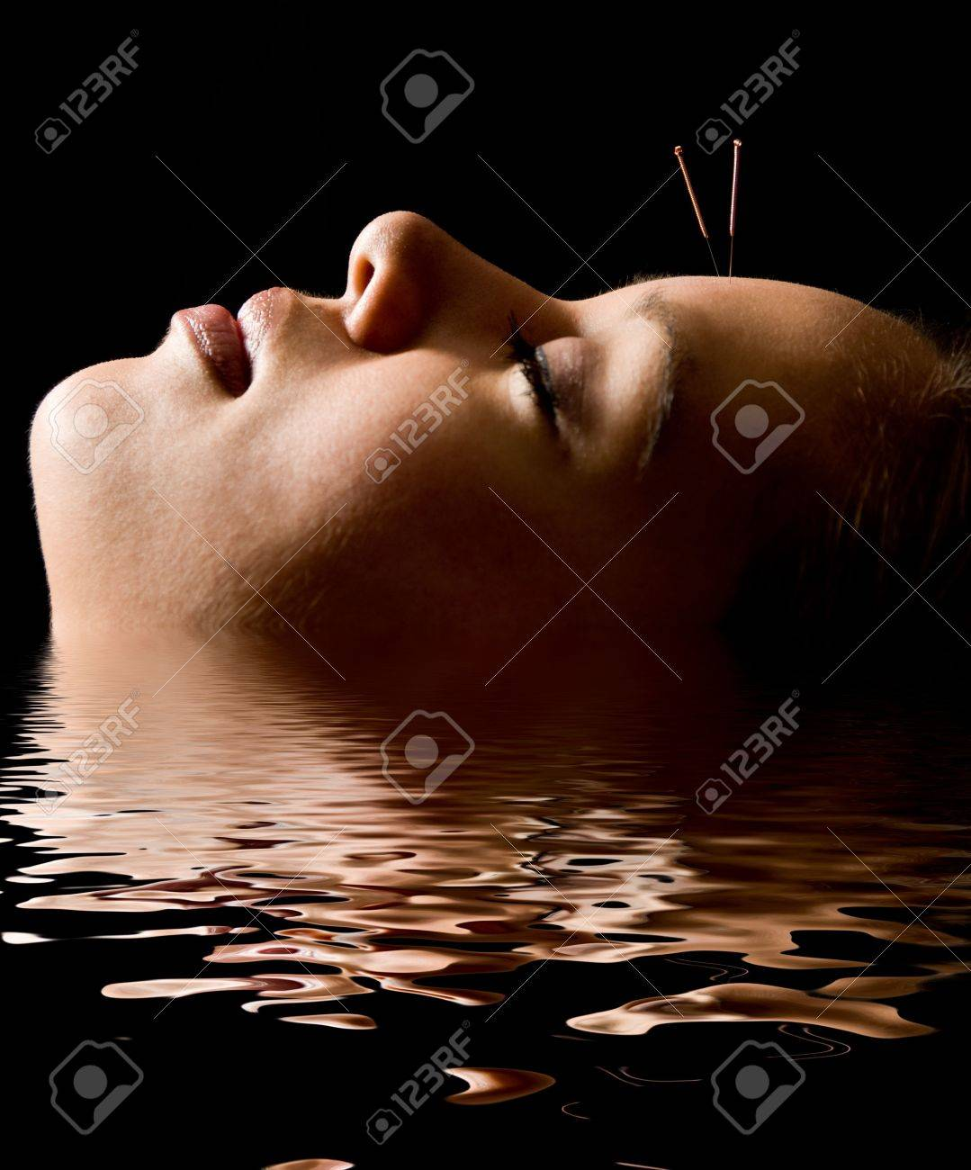 Woman getting an acupuncture treatment in a spa Stock Photo - 3080721