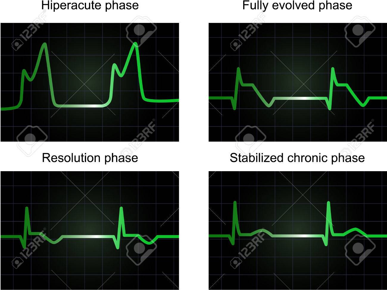 Processe of miocardial infarction on four phases, monitor screen showing electrocardiogram signal, vector and JPEG Stock Vector - 6204853
