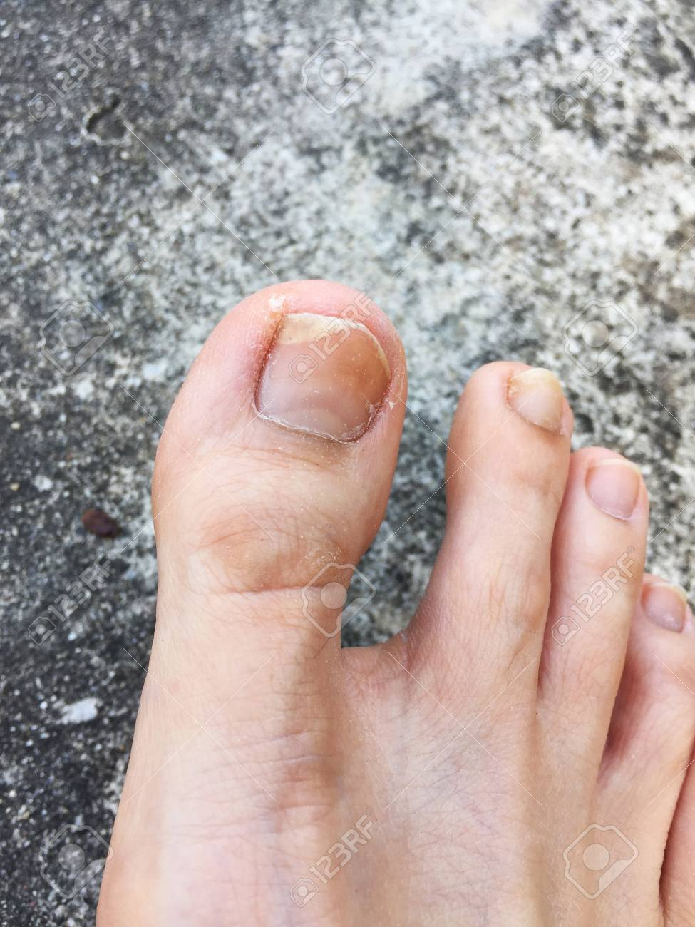 Foot And Fingernails Isolated On Cement,Top View. Fungal Infection ...