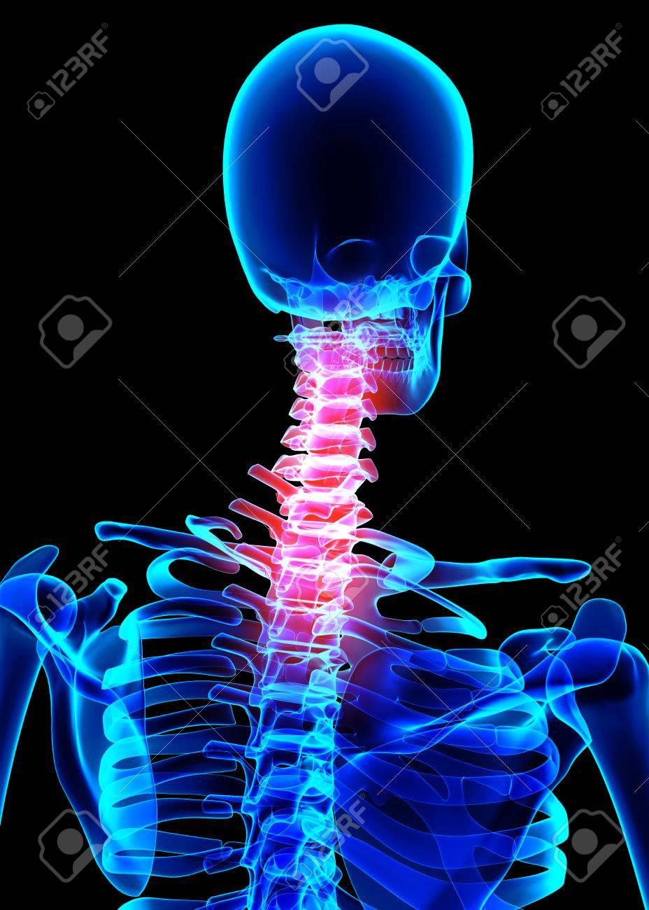 Ilustración 3D, El Cuello Doloroso Esqueleto De Rayos X, Concepto ...