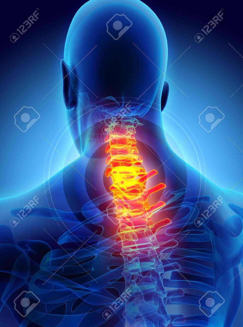 3D-Darstellung, Hals Schmerzhaft - Cervica Wirbelsäule Skelett X-ray ...
