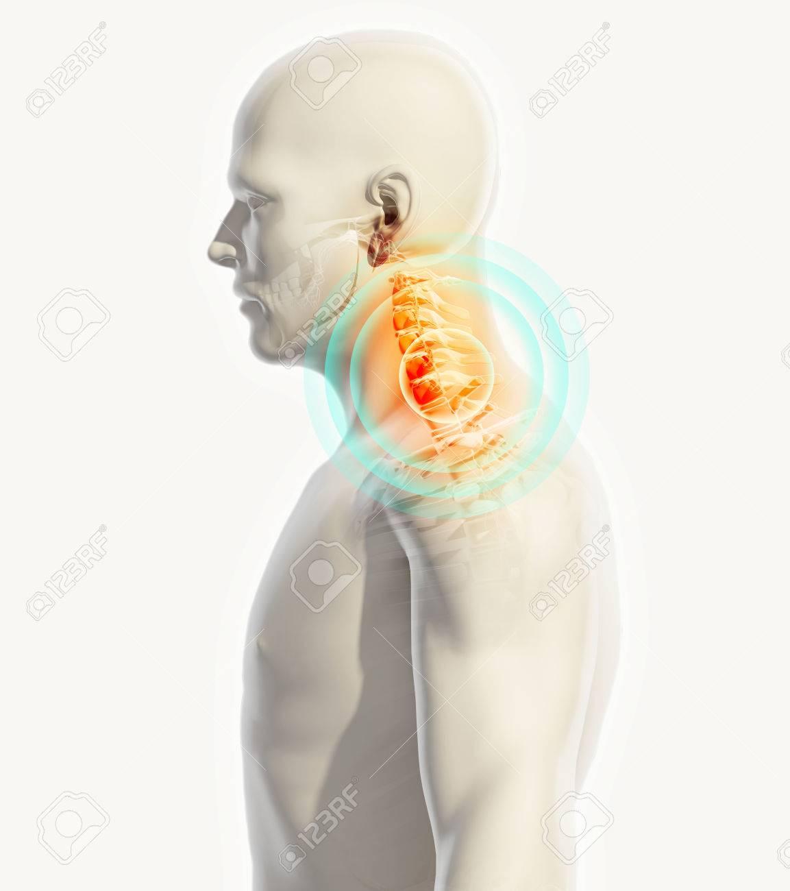 Ausgezeichnet Lendenwirbelsäule X Ray Anatomie Galerie - Anatomie ...