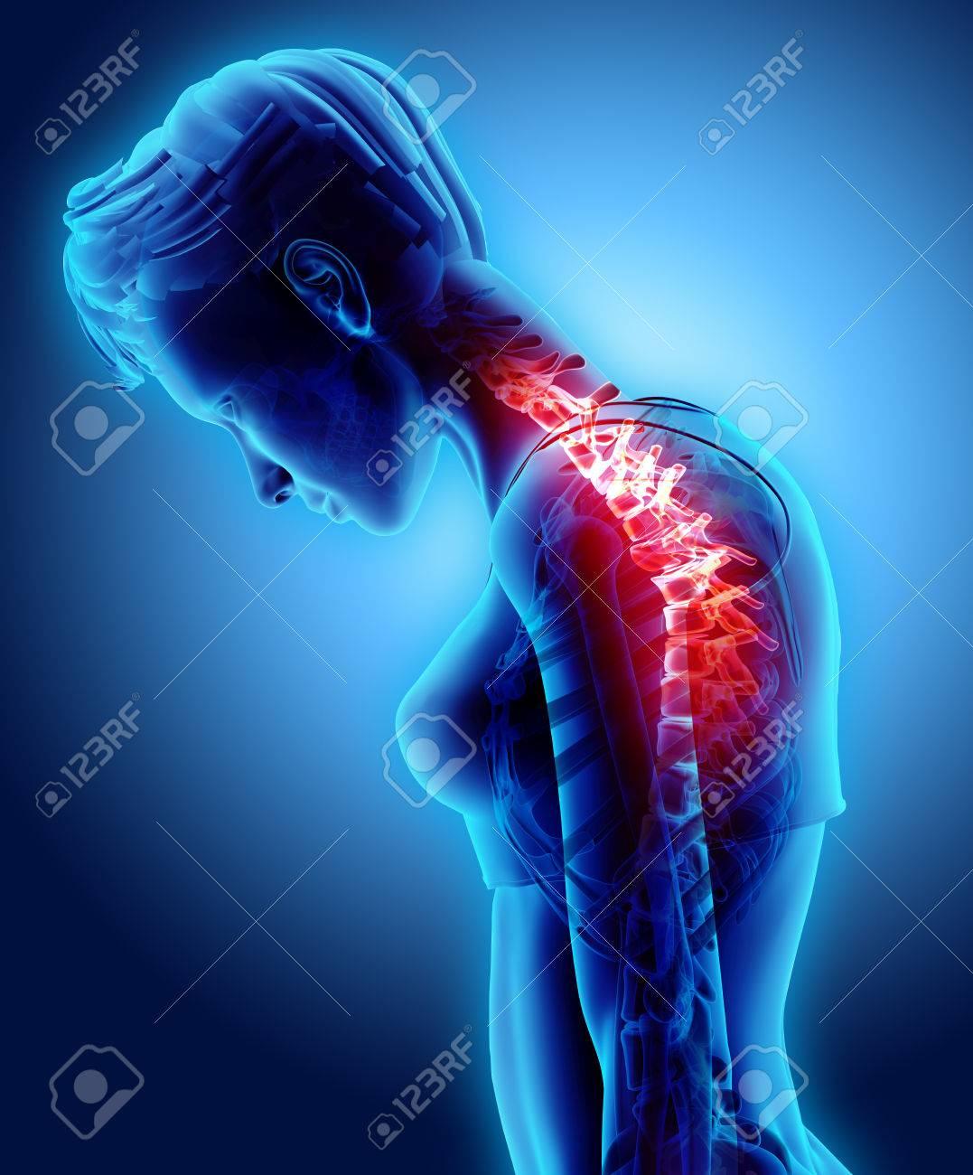 3D Illustration, Neck Painful - Cervical Spine Skeleton X-ray ...