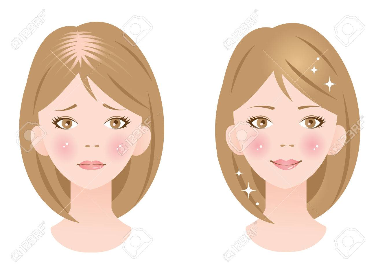 thinning hair - 36990077