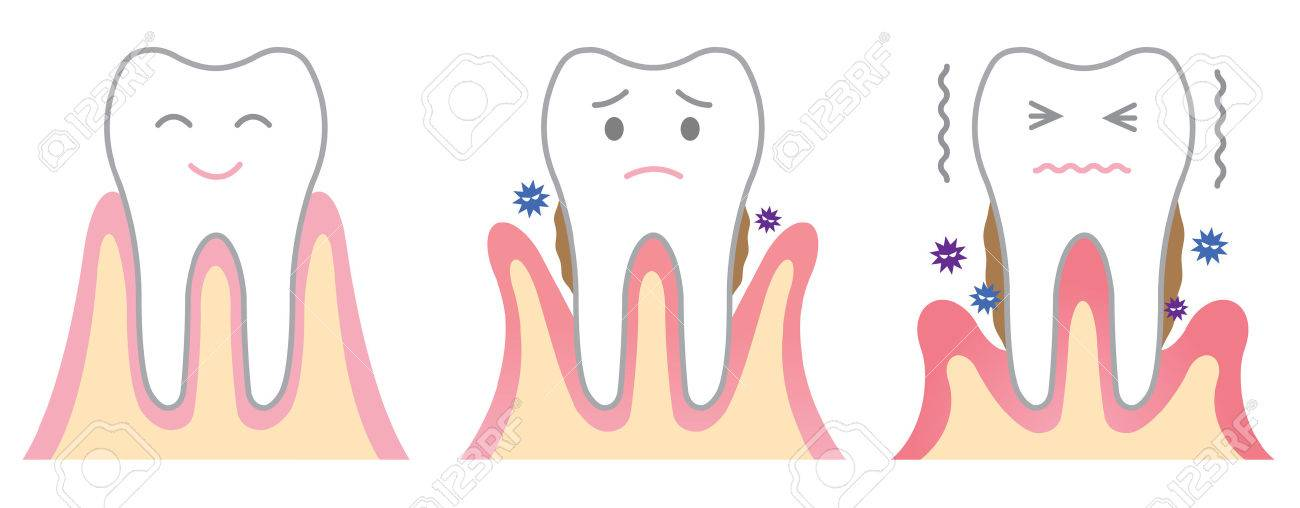 periodontal disease - 37209409