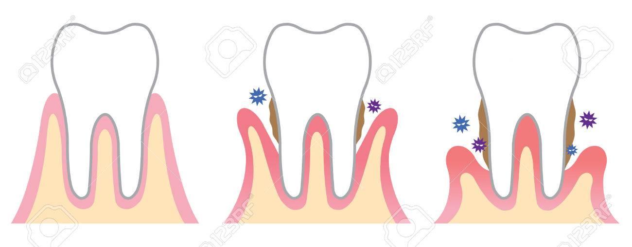 periodontal disease - 37352975