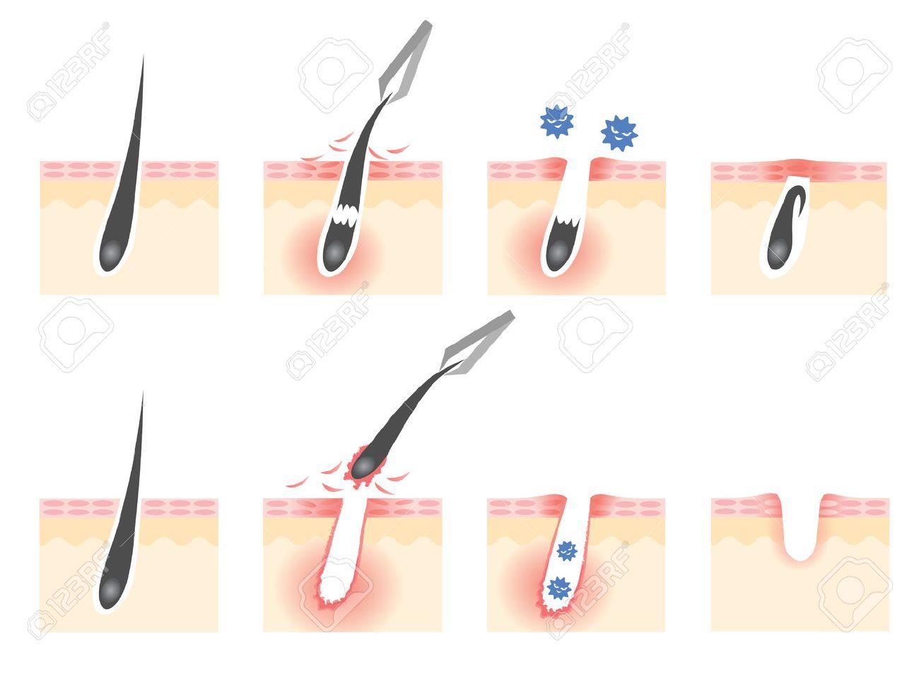 tweezers hair removal skin troubles - 38924876