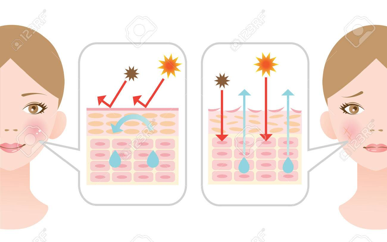 dry skin and healthy skin - 56648873