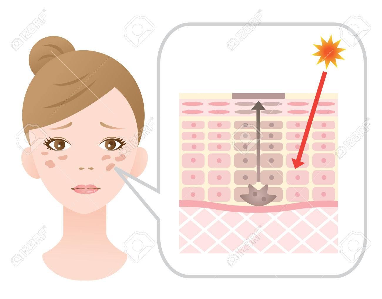 facial blotches and skin mechanism - 57629221