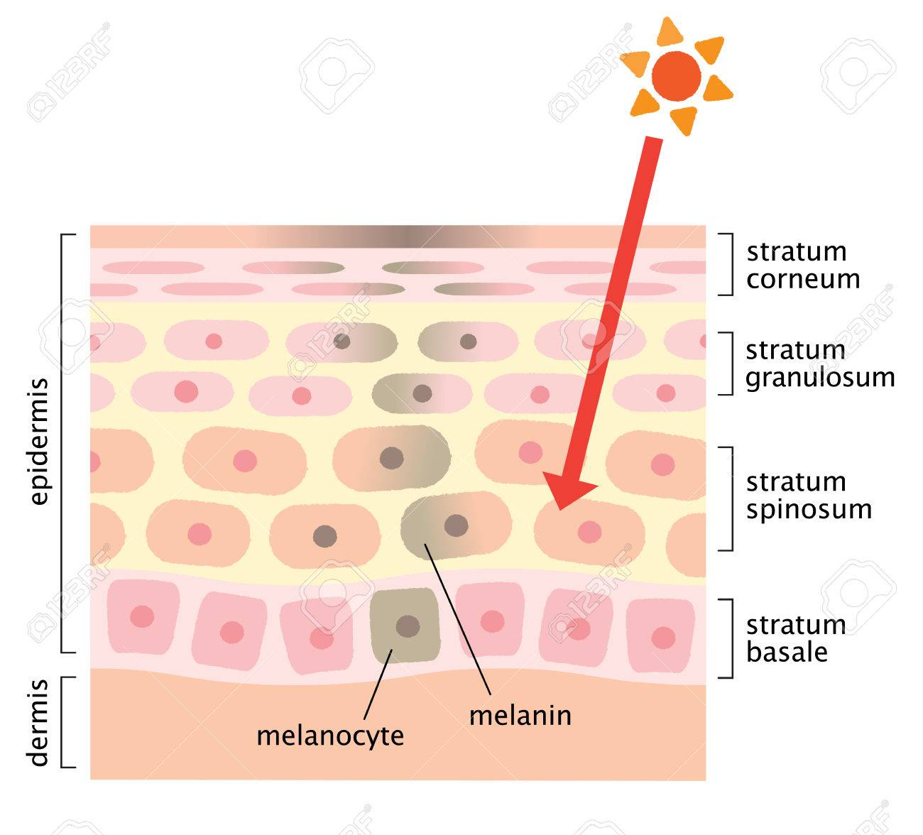 skin mechanism of facial blotches - 58439505