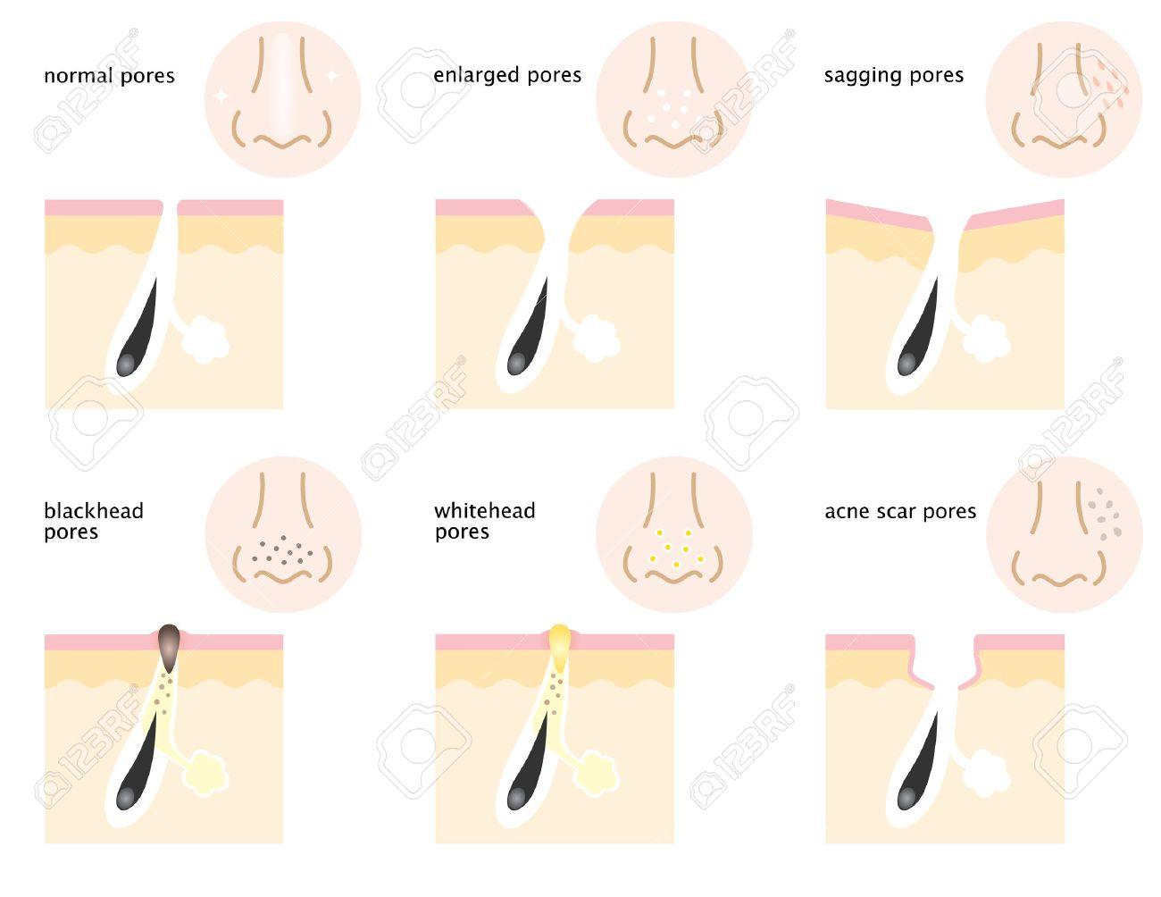 There are kinds of skin pores on nose and cheeks, normal pores, sagging pores, open pores, blackhead pores, whitehead pores, and acne scar pores. - 63202043