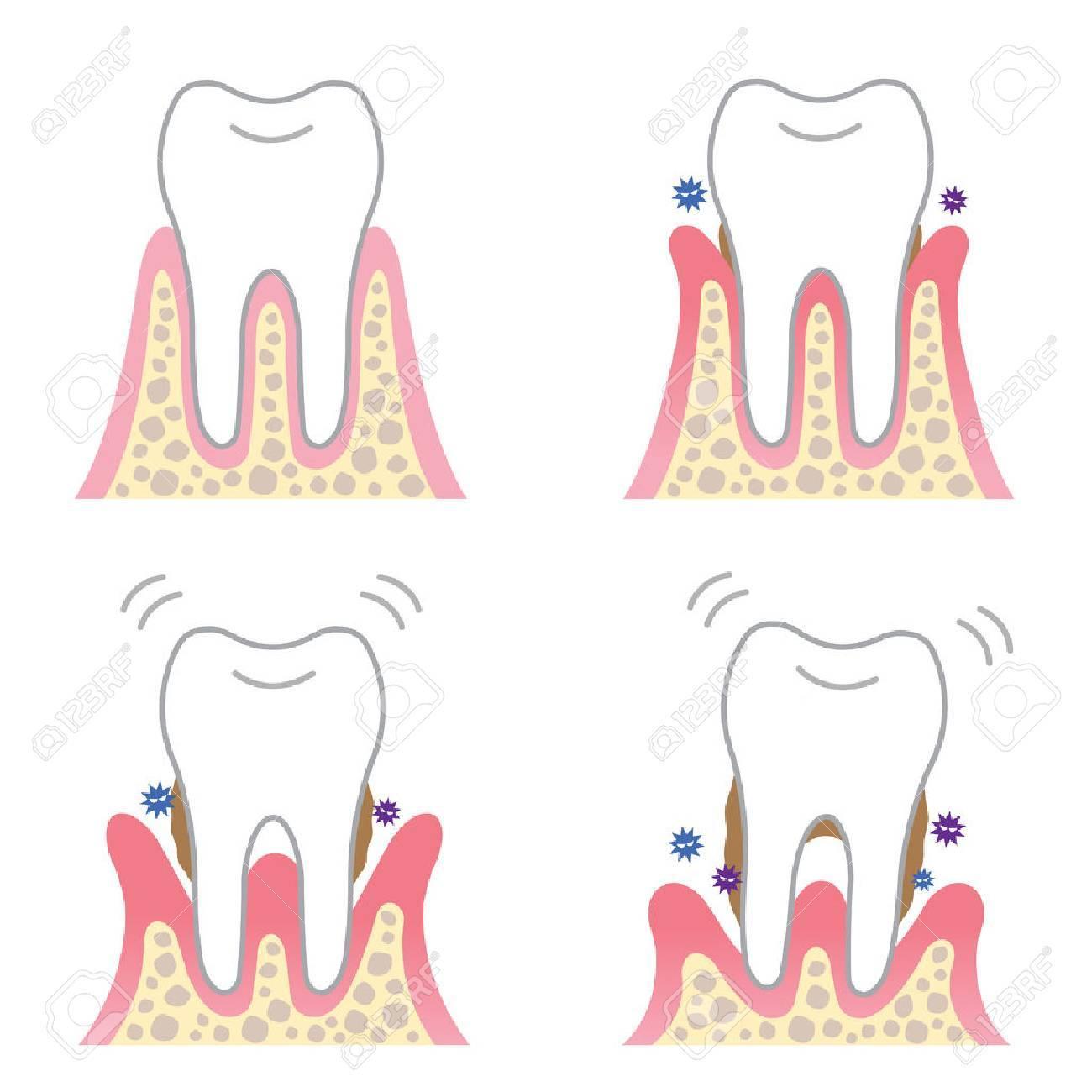 periodontal desease - 64624932