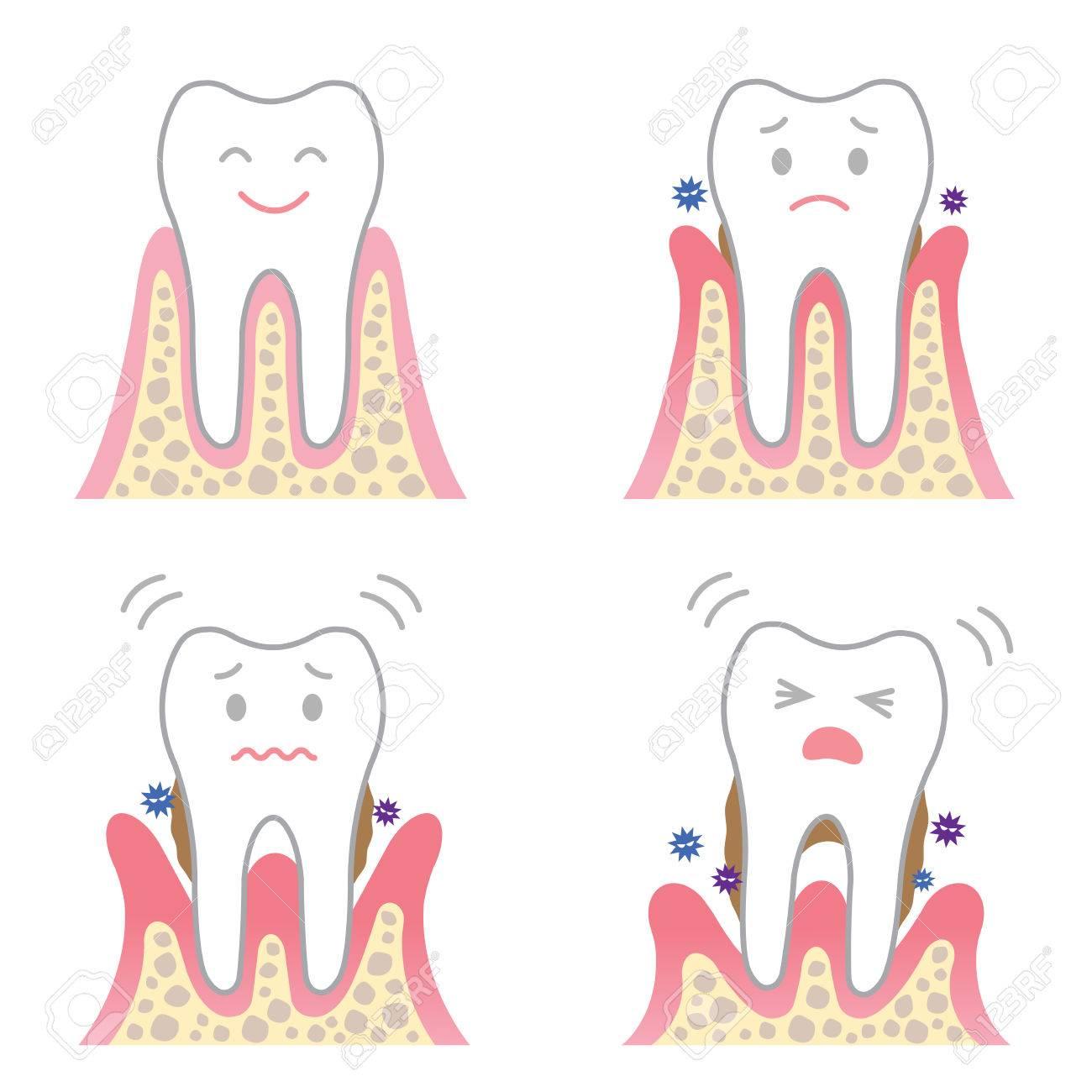 periodontal disease - 64624920