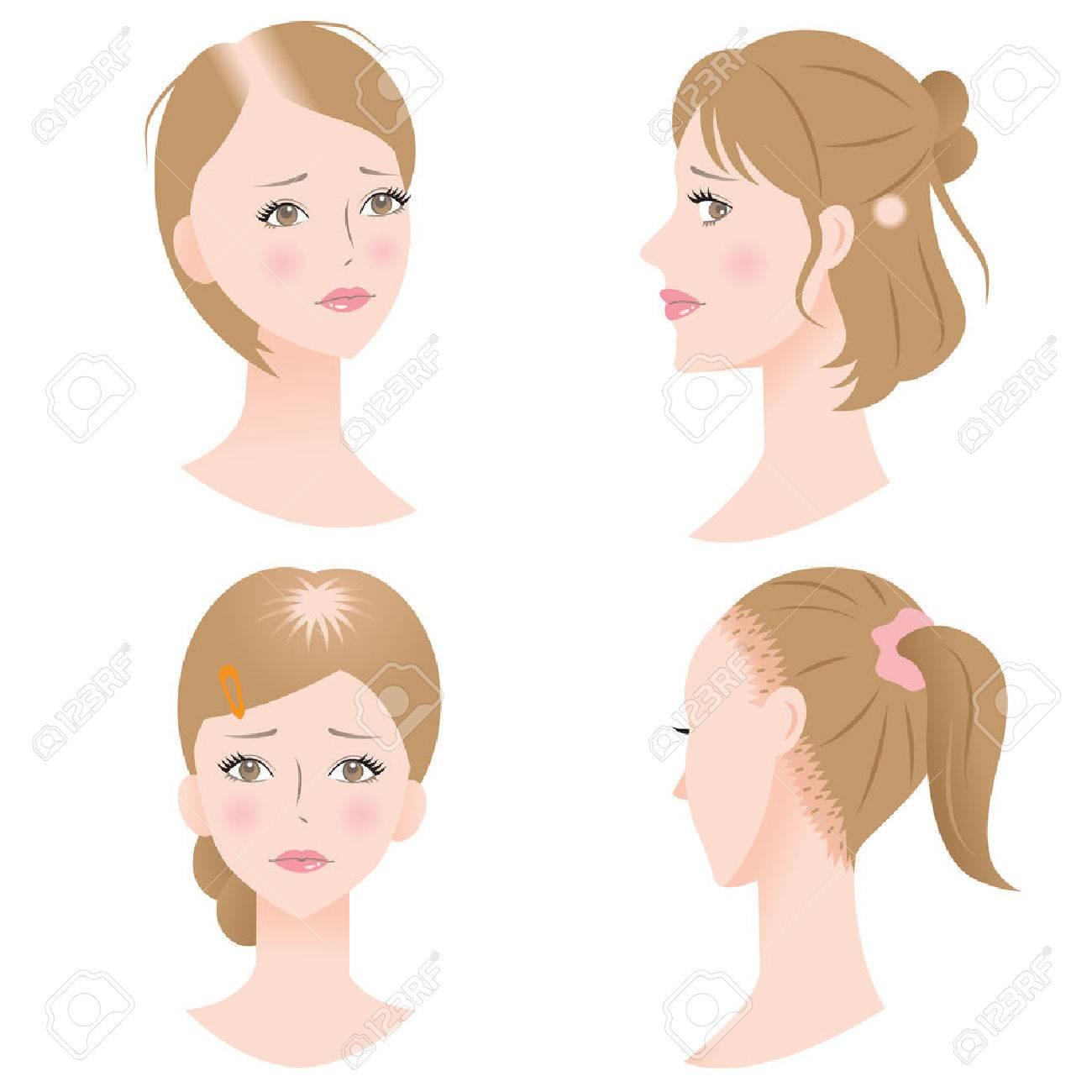 female hair loss - 64624990