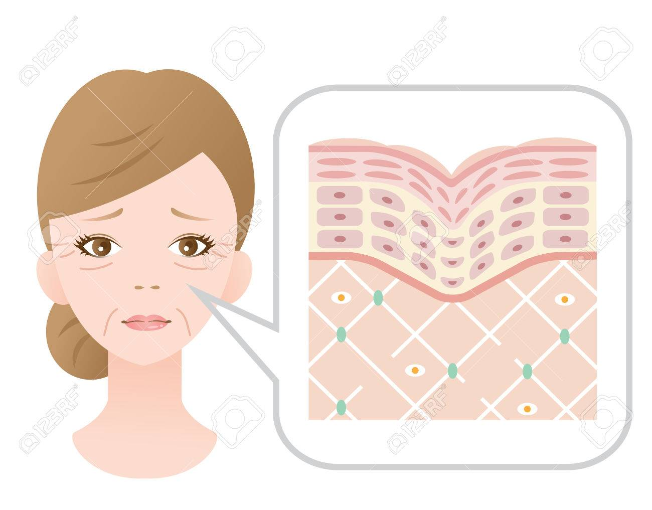 Diagram of old skin showing the collagen framework is broken and wrinkles appears. - 75454332