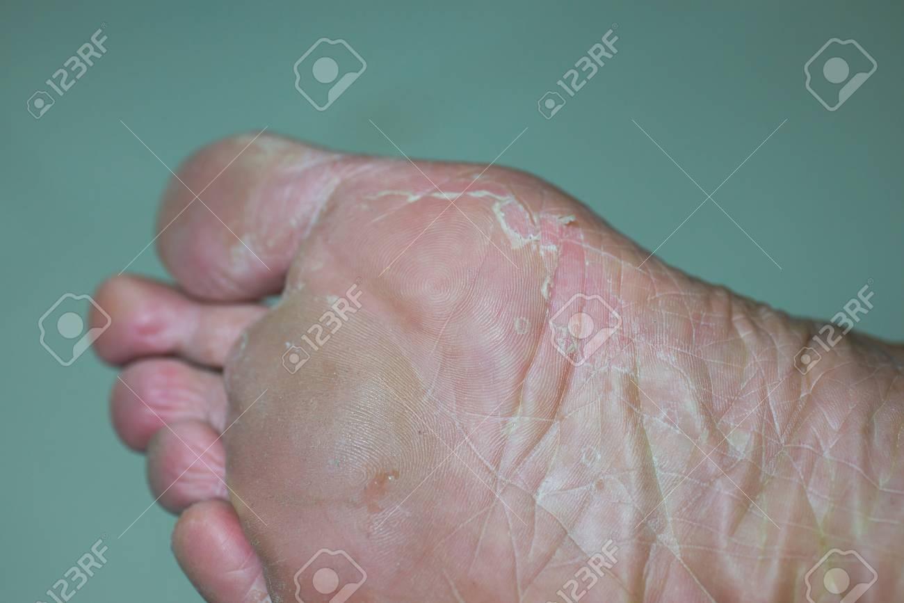 dry peeling skin on feet