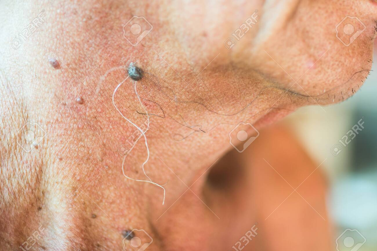 warts on elderly skin