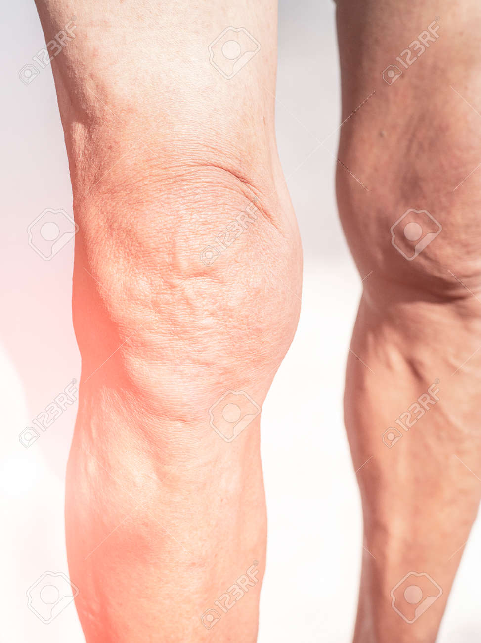 Poor knee joints of the elderly with muscular inflammation and osteoarthritis. - 169285659