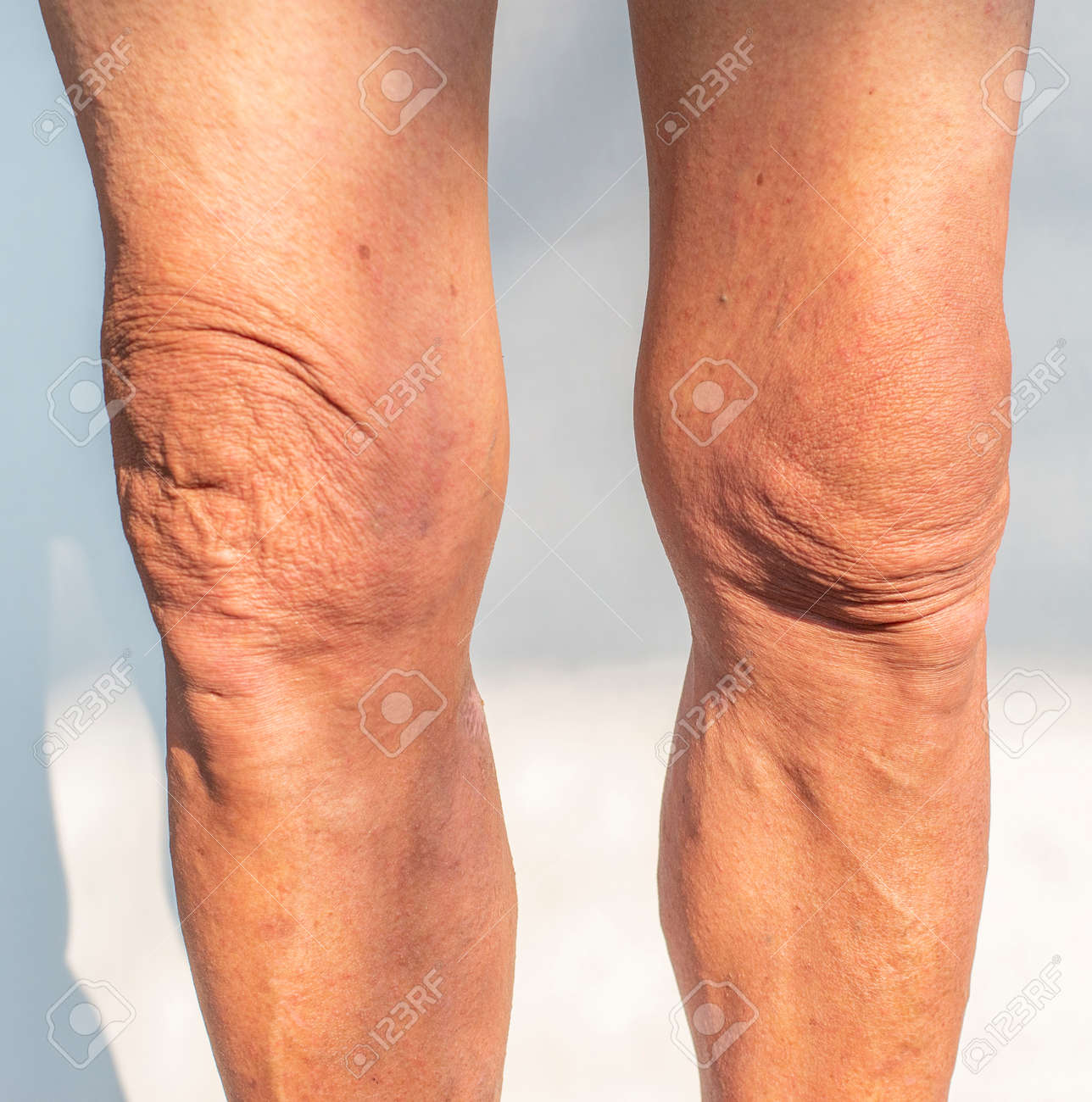 Legs and knees picture of an elderly person with health problems - 169651790