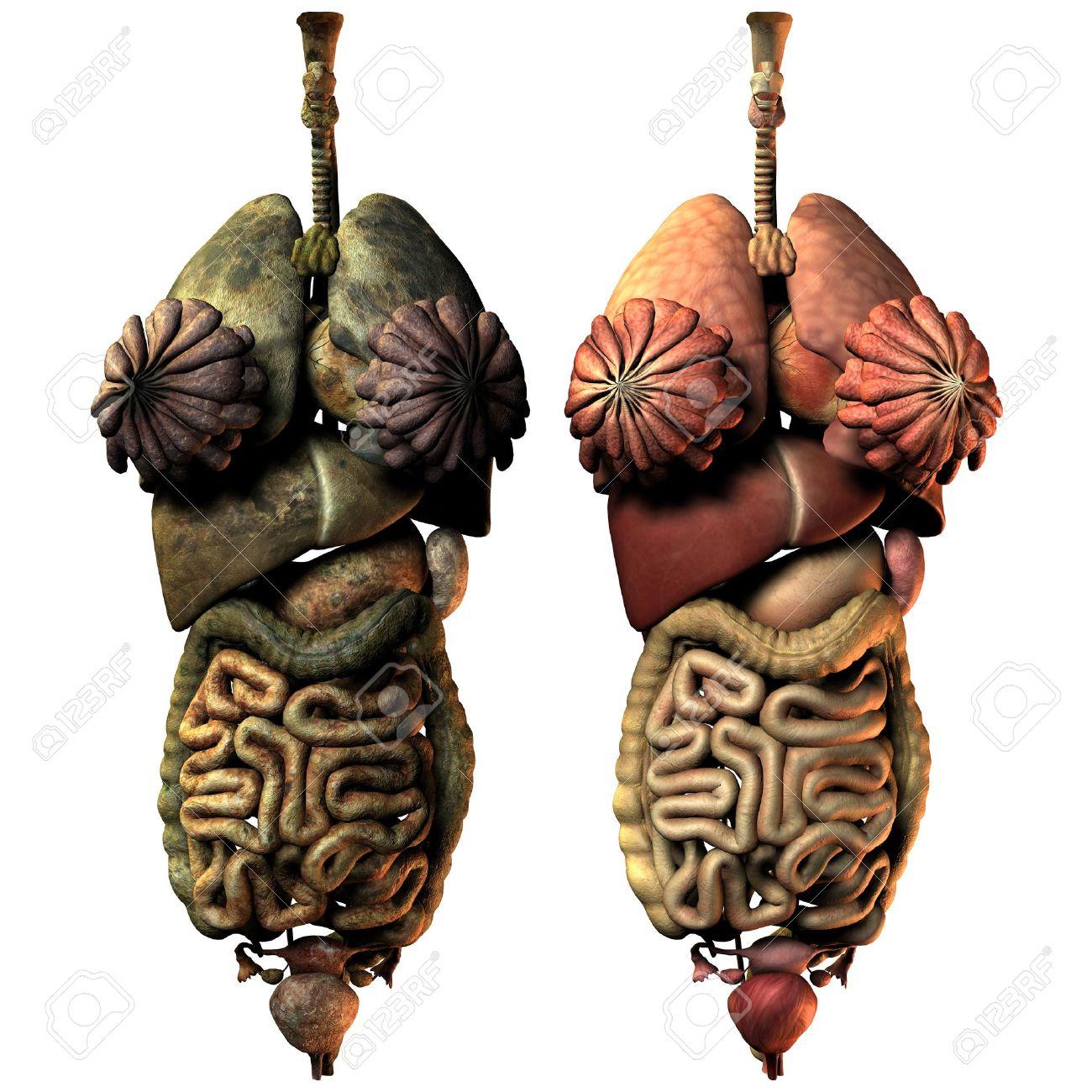 Representación 3D Enfermos Y Sanos órganos Internos De La Mujer ...