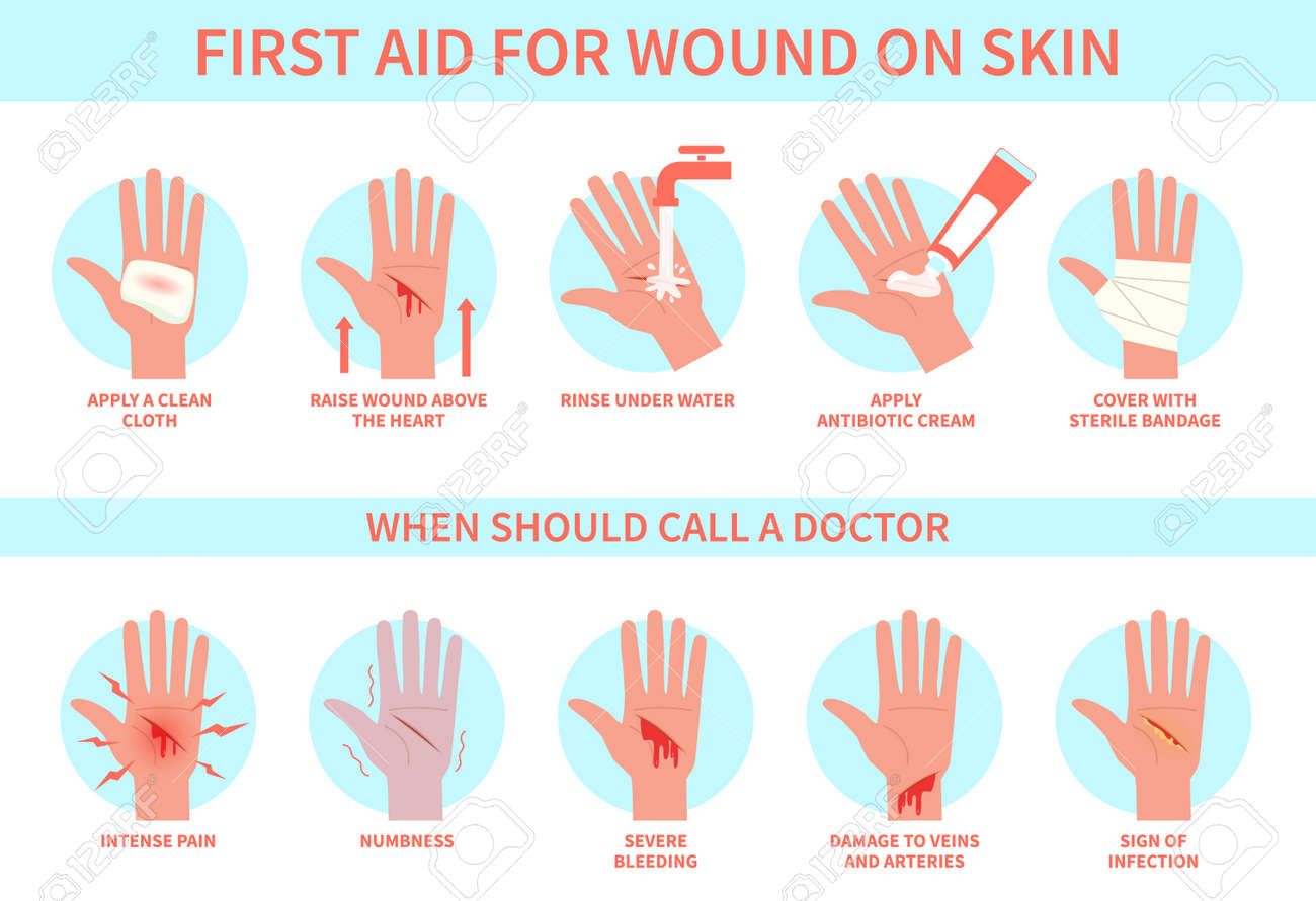 First aid for wound on skin. Damage, hurt bleeding cut hand skin and emergency treatment procedure, therapy injury medical guide, information poster help steps for clinics vector flat infographic - 158258032