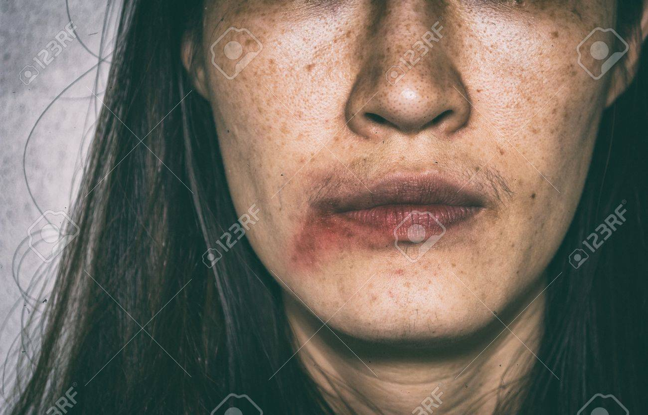 Stock Photo Woman Being Abuse Bruised On Face With Black Shadow