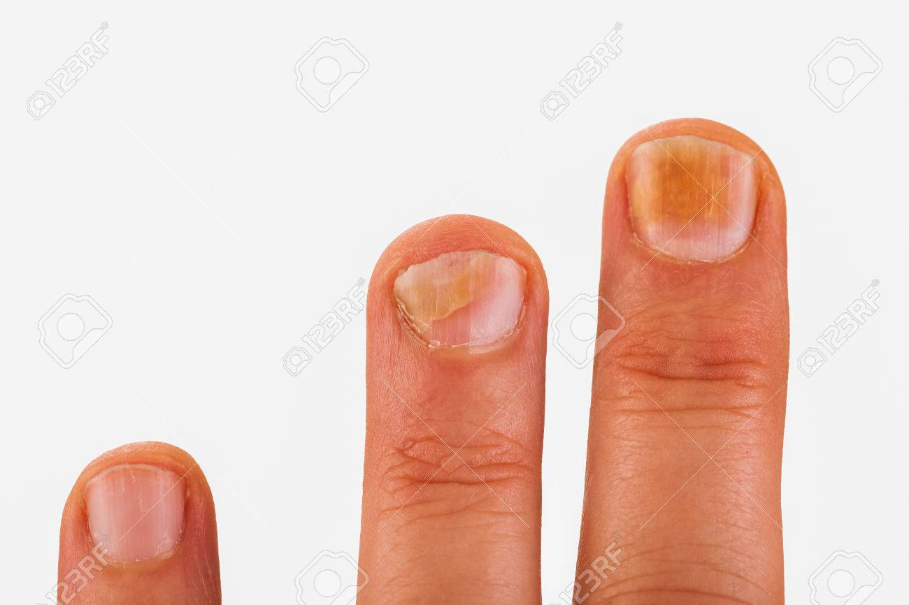 Fingernails With Nail Fungus Stock Photo, Picture And Royalty Free ...