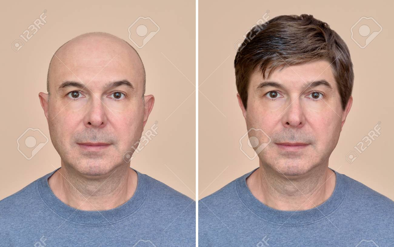 Two portraits of a same middle aged bald man before and after wearing wig - 104623061